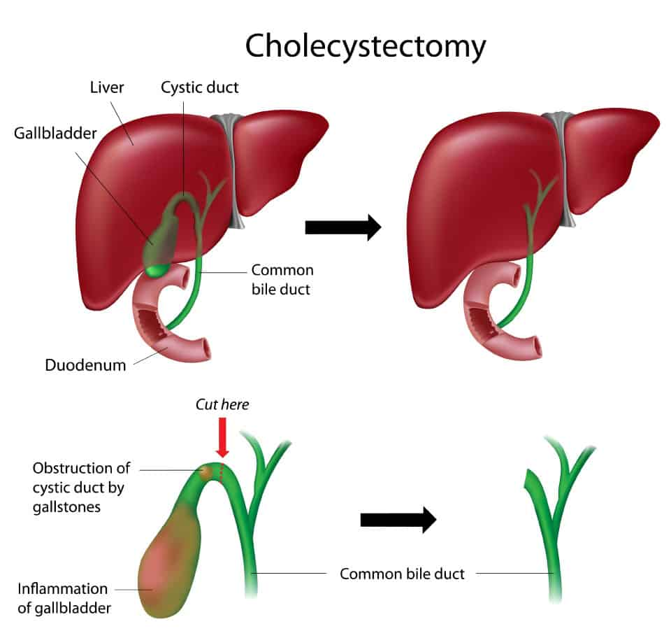Illustration of Cholecystectomy Surgery