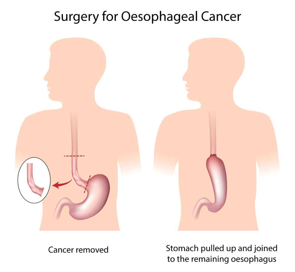 Illustration of Oesophageal Cancer surgery