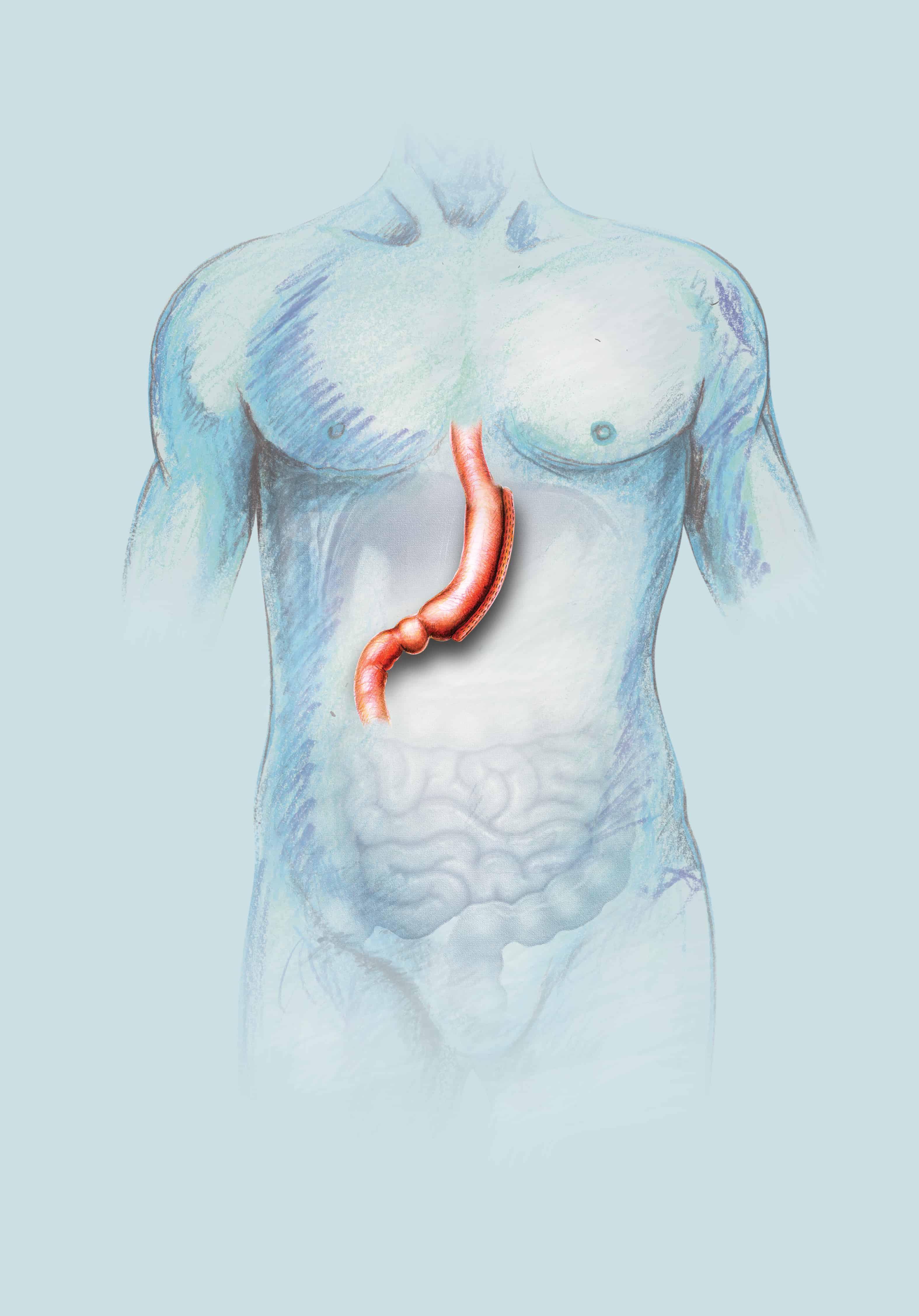 Sleeve Gastrectomy illustration